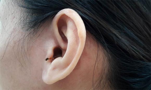 Xử lí khi côn trùng chui vào tai ai cũng nên biết